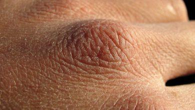 تصویر از چگونه از پوست دست در روزهای شیوع کرونا محافظت کنیم؟