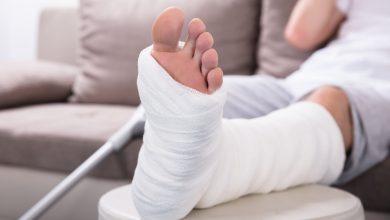 تصویر از اقدامات اولیه در هنگام مواجهه با شکستگی دست و پا