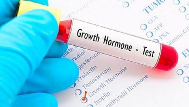 تصویر از در مورد هورمون رشد انسان چه میدانید؟