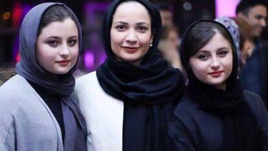 تصویر از لایو نیکا فرقانی در مورد جراحی صورت + فیلم