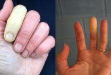 تصویر از سندرم رینود چیست، چه علائمی دارد و چگونه درمان میشود؟